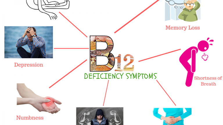 11 Warning signs and symptoms of Vitamin B12 deficiency