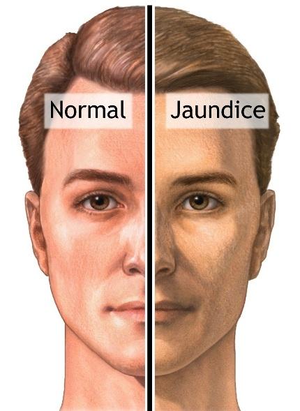 pale or jaundiced skin