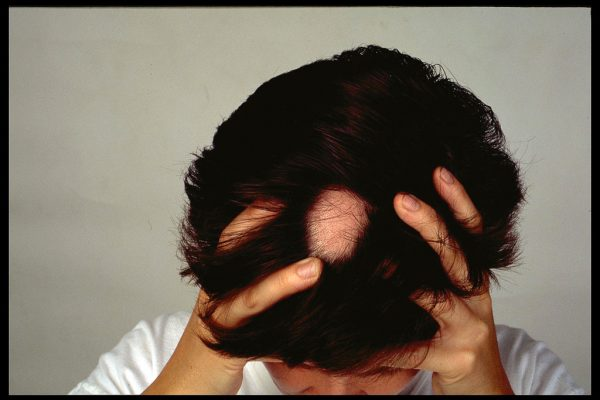 Hair Loss & Alopecia Areata – Causes, symptoms and treatment